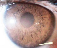 Deficiencia linfática iris café