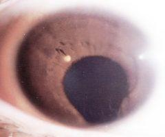 Deformación pupilar