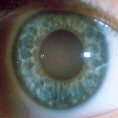 Iris claro (azul) Linfático