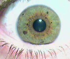 Psora en otro tipo de ojo