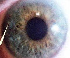 Rosario linfático iris azul o mixto