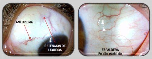 imagen-esclerologia-iridologia 4