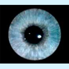iridologia-iris-aroyo-1