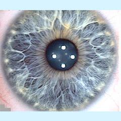 iridologia-iris-flor-1