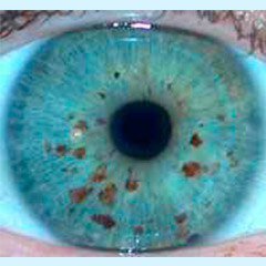 iridologia-iris-joya-2