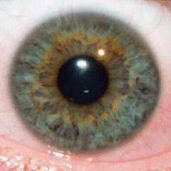 iridologia-iris-punta-de-lanza-2